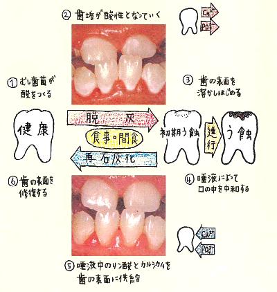 虫歯はどうやってできるの?