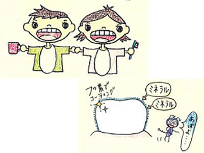 専門家オススメの虫歯予防対策